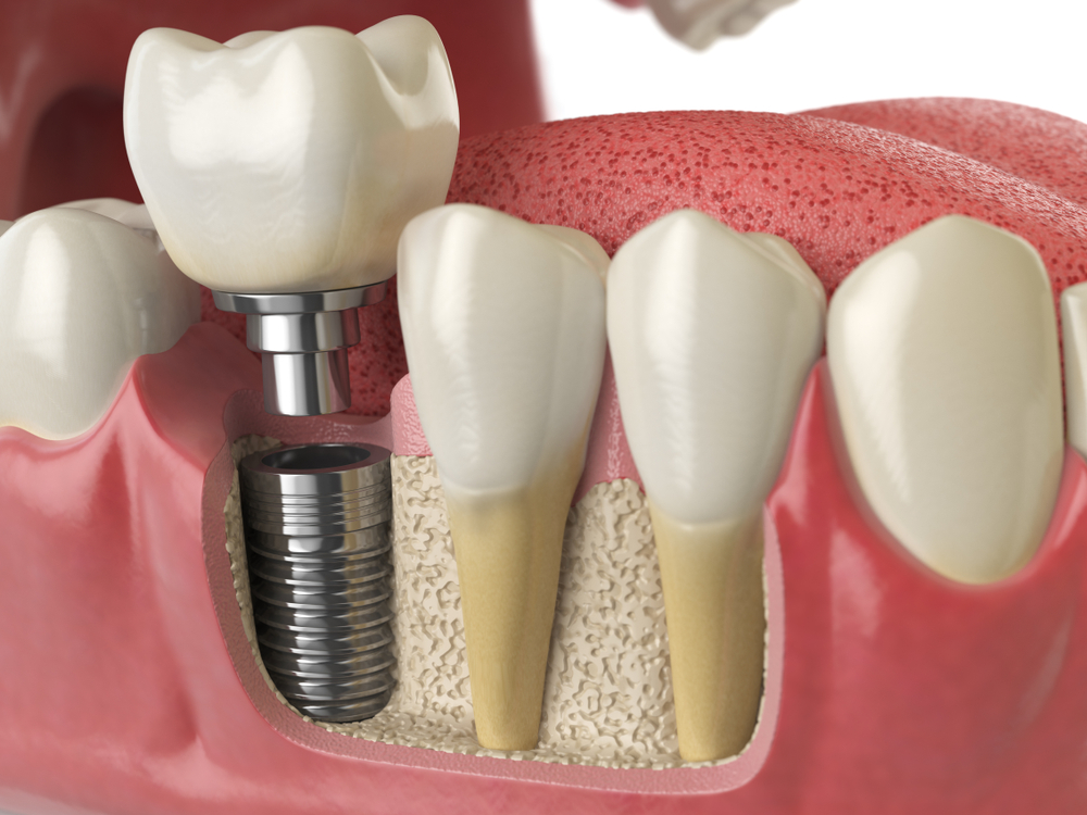 dental implant cost west chester